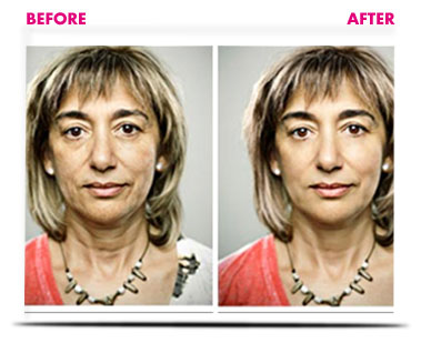 digital facelift